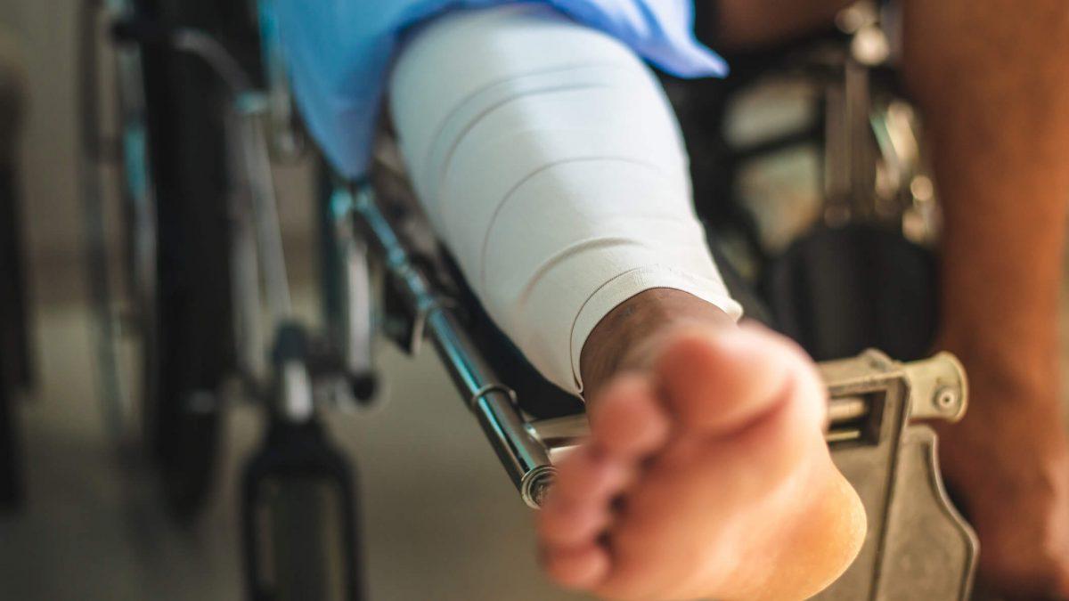 Auxílio-acidente: como funciona na previdência?